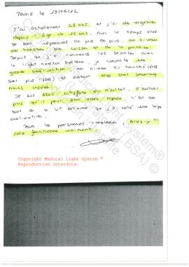 traitement des vergetures paris avis - traitement par LED Medical Light System ® CENTRE PILOTE (LBSA) © Melle KI.....