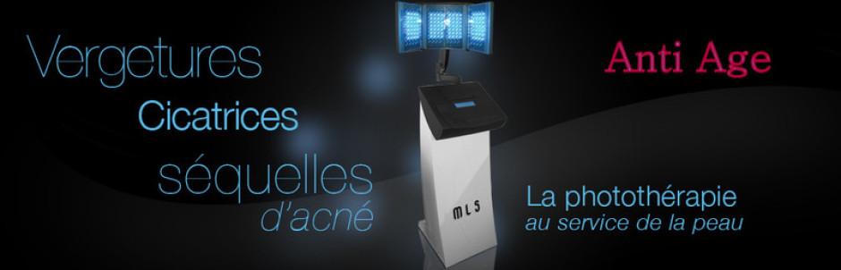 EXIGEZ Médical Light System : la seule technique de traitement des vergetures par LED aux résultats scientifiquement prouvés par une étude clinique et biologique, effectuées en milieu Hospitalier, à l'Hôpital Pitié Salpêtrière