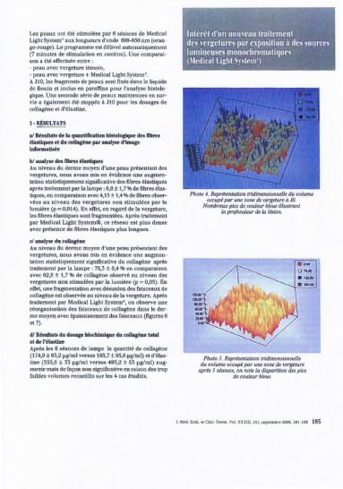 Etudes sur les vergetures : résultats - Copyright Medical Light System©