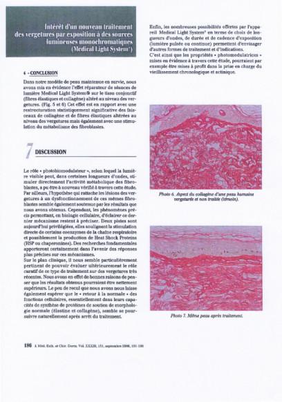 Etudes sur les vergetures : conclusion et discussion - Copyright Medical Light System©