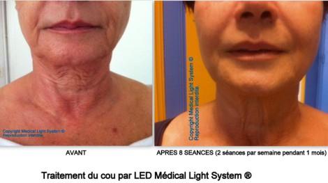 Traitement du rajeunissement et du raffermissement du cou par LED Médical Light System® Mme A.....