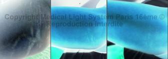 photos vergetures peau noire sur intérieur des cuisses droit avant apres avec vu EN RELIEF - traitement par LED Medical Light System® centre Pilote © Melle D......