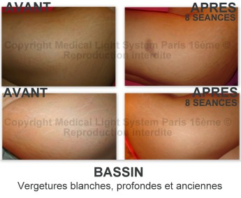 photos vergetures blanches sur bassin avant après - traitement par LED Medical Light System ©