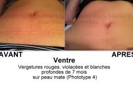 photo de vergetures ventre grossesse avant après avec témoignage - traitement des vergetures par LED Medical Light System® Centre Pilote Paris © Mme LO.....