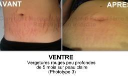 photo vergetures ventre grossesse avant après - traitement des vergetures par LED Medical Light System® Centre Pilote Paris © Melle M.....
