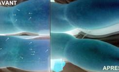 photos vergetures blanche avant après avec Vu en relief + Témoignage - soins par LED Medical Light System ® CENTRE PILOTE (Laboratoire LBSA) © Mme BRE.....