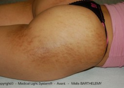 photo vergeture grossesse sur Fessier et peau metissée avant - traitement par LED Medical Light System © Melle BARTHELEMY
