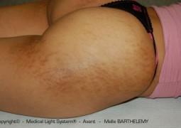 photo vergeture grossesse sur Fessier et peau metissée avant - traitement par LED Medical Light System © Melle BARTHELEMY