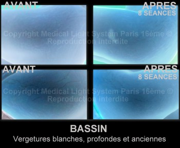 photo vergetures blanches sur bassin avant après avec vu EN RELIEF - traitement par LED Medical Light System ©