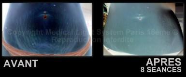 photo vergetures grossesse sur ventre avant apres 8 séances avec vu EN RELIEF - traitement par LED Medical Light System © Mme SIMON