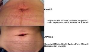 photo vergetures grossesse sur ventre peau très claire avant apres - traitement par LED Medical Light System® centre Pilote © Mme COR......