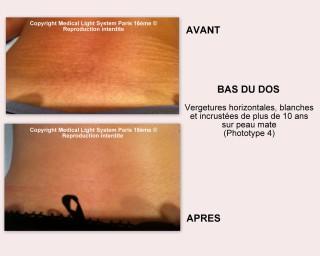 photo vergetures sur bas du dos et peau mate avant apres - soins des vergetures par LED Medical Light System® centre Pilote © Melle BOUC.....