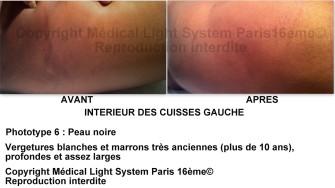 photo vergetures peau mate sur intérieur des cuisses gauche avant apres - soins des vergetures par LED Medical Light System ® centre Pilote © Melle D.....