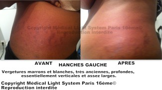 photos vergetures peau noire sur hanche gauche avant apres - traitement vergetures par LED Medical Light System® centre Pilote © Melle D.....