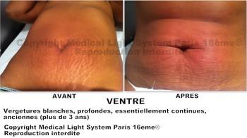 photo vergetures peau foncée sur ventre avant apres - soins des vergetures par LED Medical Light System® centre Pilote © Mme DO.....
