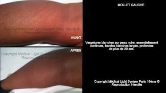 photo vergetures mollet sur peau noire avant apres - traitement des vergetures par LED Medical Light System® centre Pilote © Melle D.....