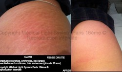 photos vergetures blanches très anciennes sur fesse avant apres - traitement par LED Medical Light System ® centre Pilote (Laboratoire LBSA) © Melle T.....