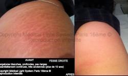 photos vergetures blanches très anciennes sur fesse avant apres - traitement par LED Medical Light System ® centre Pilote (Laboratoire LBSA) © Melle T.....