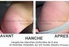 photo vergetures sur hanche droite avant apres + témoignage - traitement par LED Medical Light System® Centre Pilote Paris © Melle COU.....