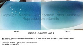 photo de vergetures blanches très anciennes sur intérieur des cuisses gauche et peau mate avant apres avec vu EN RELIEF - traitement par LED Medical Light System® centre Pilote © Melle T.....