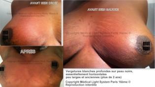 photo vergetures peau noire sur poitrine avant apres - traitement des vergetures par LED Medical Light System® centre Pilote © Mme S.....