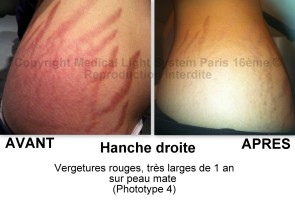 photo vergetures sur hanche gauche avant après - traitement des vergetures par LED Medical Light System® centre Pilote © Melle JEAN-BAP.....