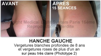 photo vergetures blanches sur hanche gauche avant après - traitement des vergetures par LED Medical Light System® centre Pilote © Melle COU.....