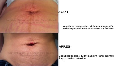vergeture violette photos vergetures grossesses avant apres led mls paris