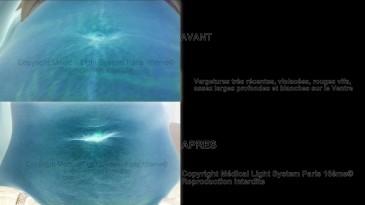 photo vergetures grossesse avant apres avec vu EN RELIEF - traitement des vergetures par LED Medical Light System® centre Pilote © Mme COR......