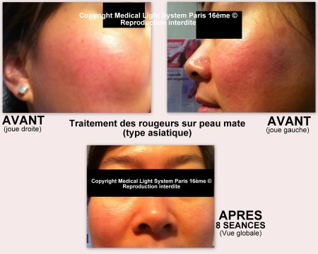 Traitement des rougeurs sur peau asiatique par LED Médical Light System® centre Pilote ©