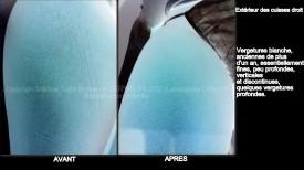 photo de vergetures blanches sur extérieur des cuisses droit et peau foncée avec vu EN RELIEF avant apres - soins des vergetures par LED Medical Light System® centre Pilote © Melle SA.....