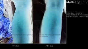 photo vergetures blanches sur mollet peau noire avec vu EN RELIEF avant apres - soins par LED Medical Light System® centre Pilote © Melle D.....
