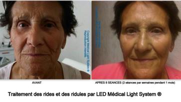 Rajeunissement et raffermissement des ridules et des ridules du visage, traitement par LED Médical Light System®