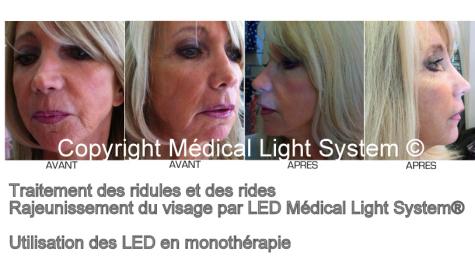Traitement du rajeunissement et du raffermissement du visage et des rides par LED Médical Light System®