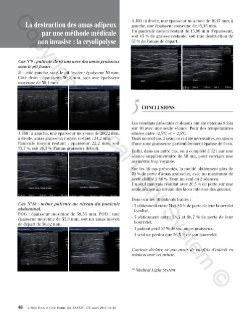 Destruction des amas adipeux : cryolipolyse par Médical Light Médical System® P6