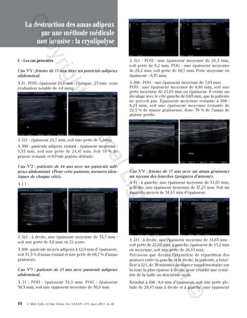 Destruction des amas adipeux : cryolipolyse par Médical Light Médical System® P4