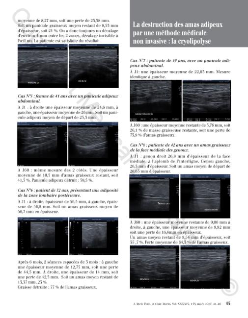 Destruction des amas adipeux : cryolipolyse par Médical Light Médical System® P5