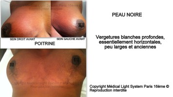 vergetures photo sur peau noire sur poitrine avant apres - traitement des vergetures par LED Medical Light System® centre Pilote © Mme S.....