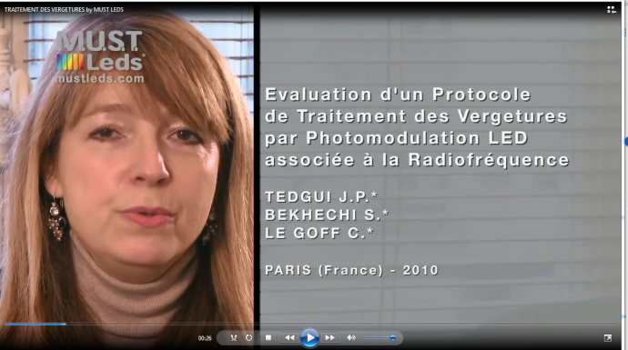 Mostled, esthesioclinic : évaluation d'un protocole de traitement des vergetures par photomodulation LED associée à la Radiofréquence (Docteur TEDGUI, monsieur LEGOFF et Docteur BEKHECHI)