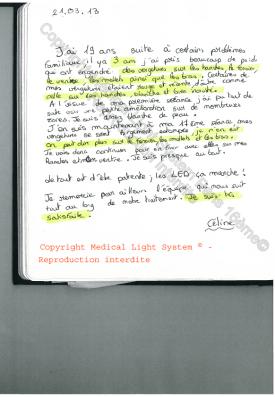 vergetures paris par LED Medical Light System® centre Pilote © Melle S.....