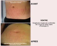 vergeture femme enceinte photos vergetures grossesses avant apres led mls paris