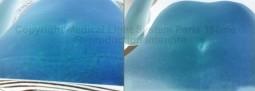vergeture femme enceinte : photos de vergeture rouge avant après sur ventre et peau claire, vu en relief - traitement des vergetures par LED Medical Light System® centre Pilote Paris (Laboratoire LBSA) © Mme LO.....
