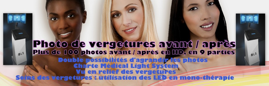 Photo de vergetures avant après, traitement par LED Médical Light System® centre Pilote © (charte MLS sur les photos)