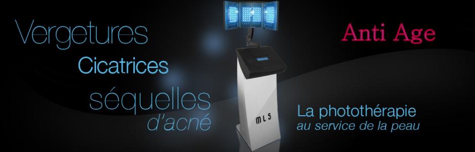 Vergetures, traitement par LED Médical Light System® toutes les questions que vous vous posez