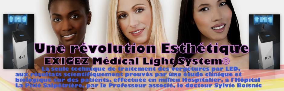 EXIGEZ Médical Light System : la seule technique de traitement des vergetures par LED aux résultats scientifiquement prouvés par une étude clinique et biologique, effectuée en milieu Hospitalier, à l'Hôpital La Pitié Salpêtrière